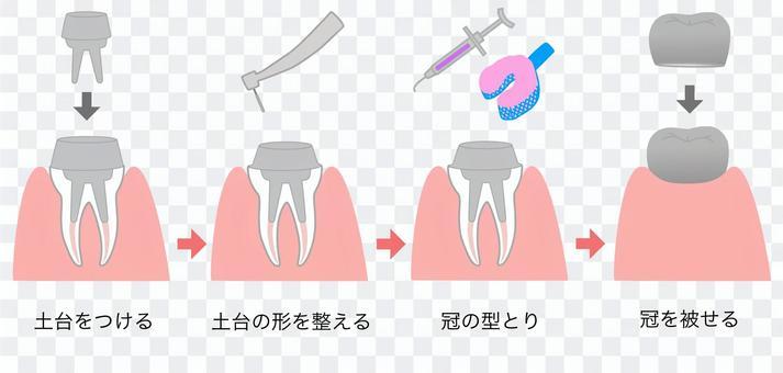 牙科治療說明從核心組到CK組