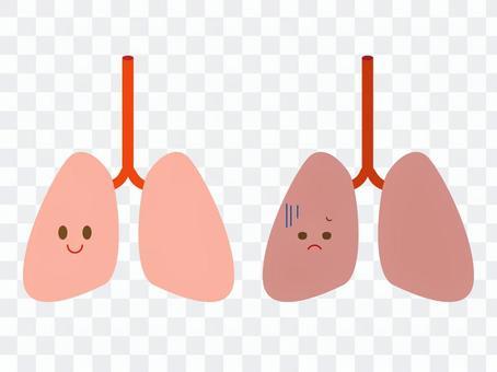 健康的肺和患病的肺