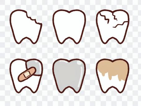 Teeth in various states
