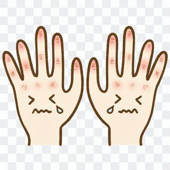 手荒れした手
