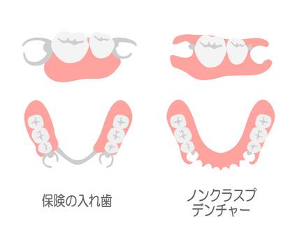 無扣假牙和保險假牙