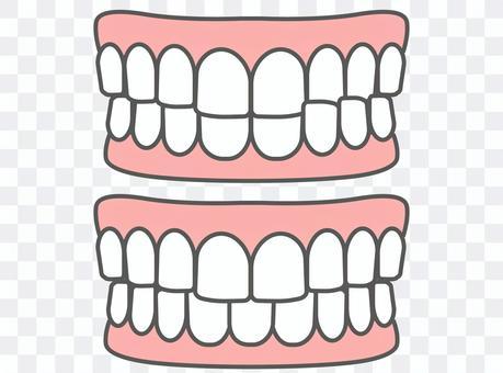 歯科_歯並び_交叉咬合