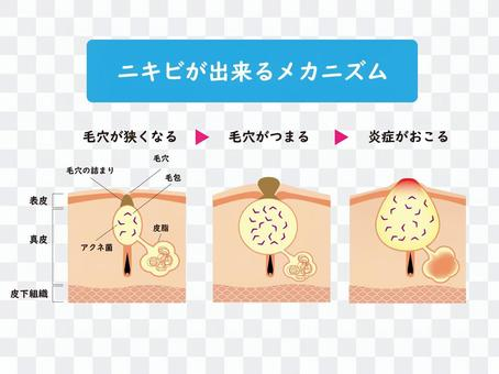 皮膚・断面図・組織図・ニキビ・セット