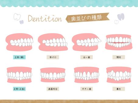 Dentition type