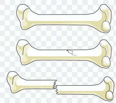 Bone 3 kinds