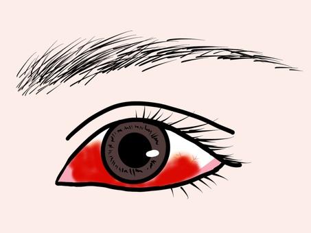 Subconjunctival bleeding and congested eyeball