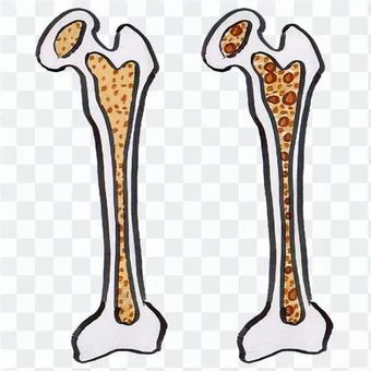 健康的骨頭和skusca骨頭
