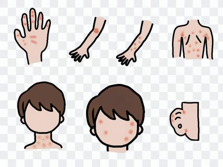 Eczema set