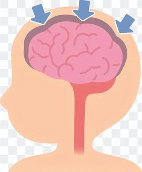 萎縮的大腦
