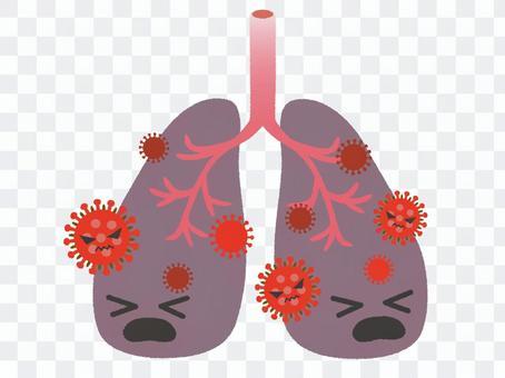 肺炎のイメージ2