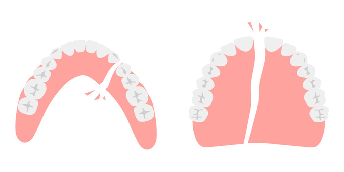 Broken dentures (upper and lower)