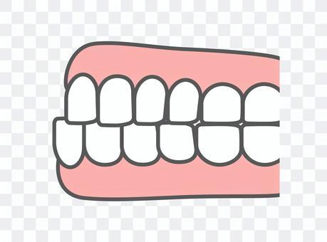 歯科_歯並び_下顎前突・受け口