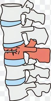 腰椎壓縮性骨折