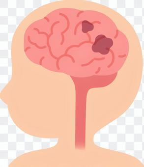 腦(血管性癡呆)