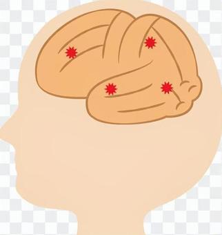 腦血管障礙_腔隙性梗塞