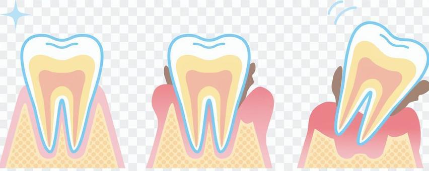牙周病的進展