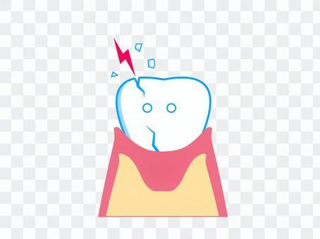 Tooth broken