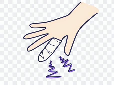 指の怪我 2
