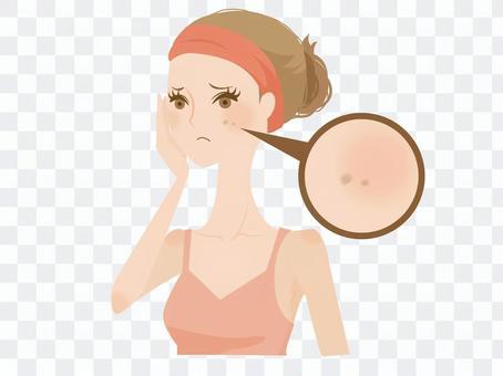 一個患有斑點的女人2