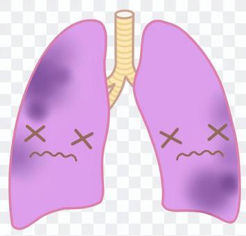病肺,破爛的肺