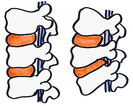 光盤herniation例證