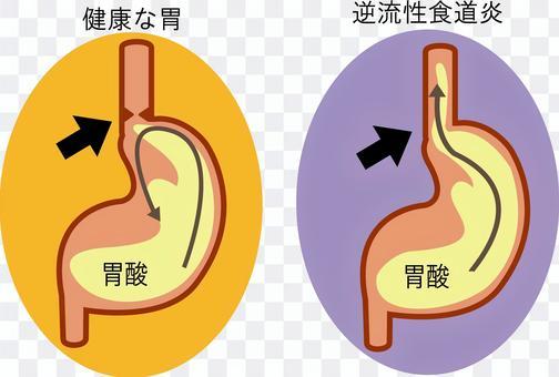 逆流 性 食道 炎