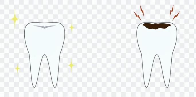 美麗的牙齒和蛀牙