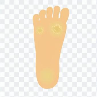 章魚的鞋底