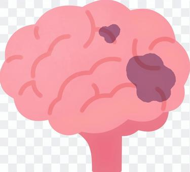 部分受損的大腦
