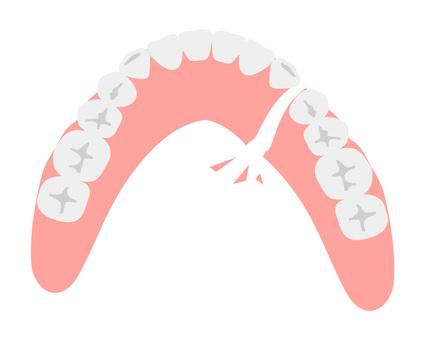 Broken dentures (lower jaw)