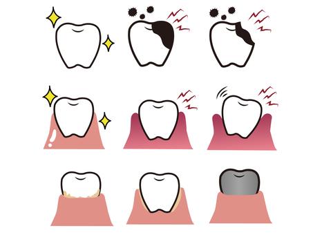 不同狀態的牙齒和牙齦