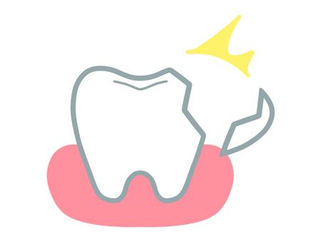 牙齒和牙齦