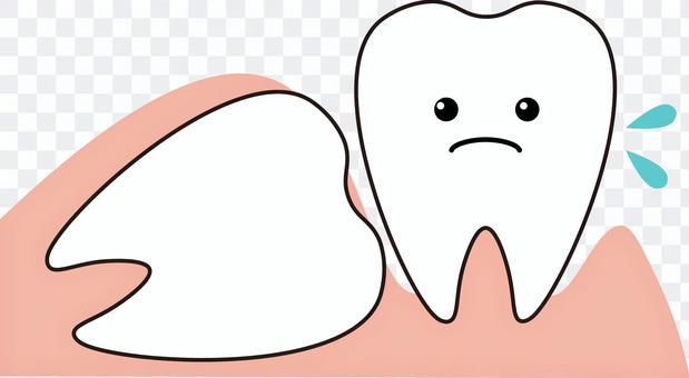 Tooth wisdom teeth