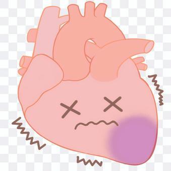 心肌梗塞,心絞痛,心律不齊,心臟