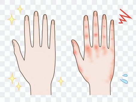 きれいな手とあかぎれの手 比較