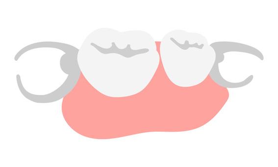 可摘局部義齒