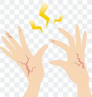 Hands / rough skin