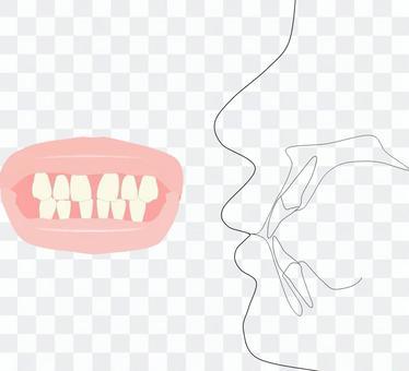 上,下前牙正中分離和麵部側面圖
