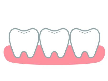 三顆簡單的牙齒和牙齦