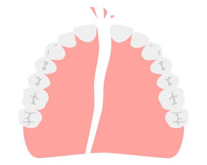 Broken dentures (upper jaw)