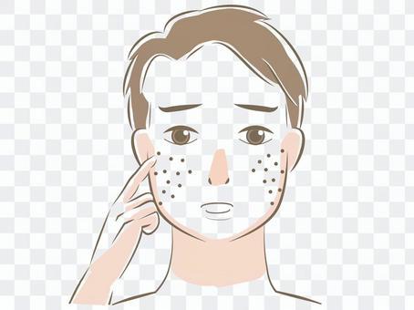 患有皮膚毛孔的男人的臉