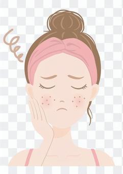 女性イラスト 肌の悩み