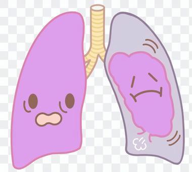 氣胸,肺萎縮