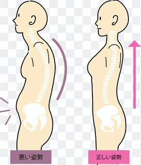 Image and skeleton of correct and bad posture