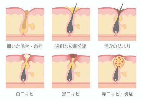 毛孔狀況和粉刺機制